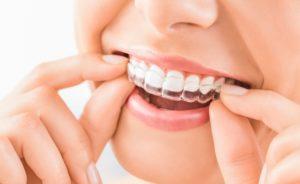 Få rettet tænder med invisalign på Nørrebro